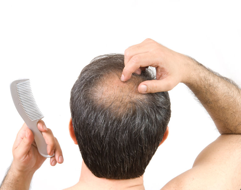 Alopecia Areata Treatment For Hair Loss In Maryland