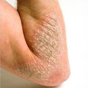 Dry Skin in Maryland