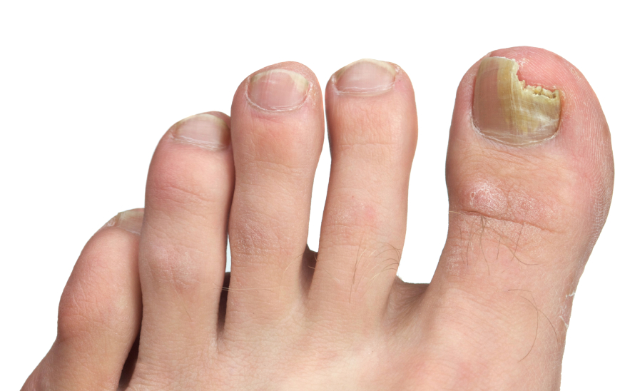 An infection with nail fungus may be difficult to treat, and it may