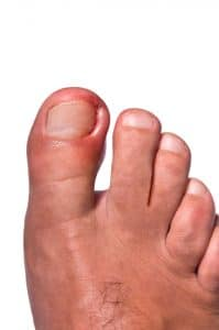 Treat ingrown toenails