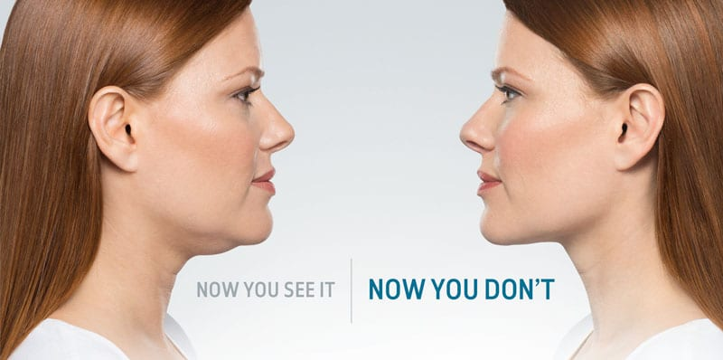 Now you see it | Now you don't with Kybella