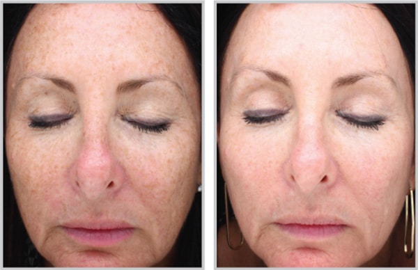 Halo Fractional Laser Photos