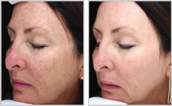 Before and After Halo treatment