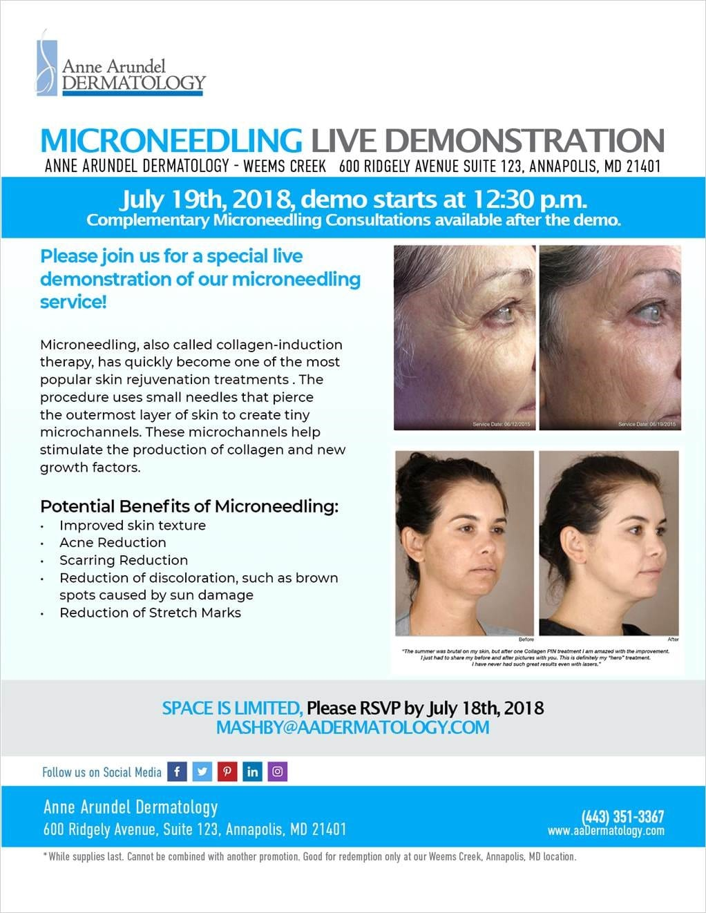 annapolis microneedling live demonstration
