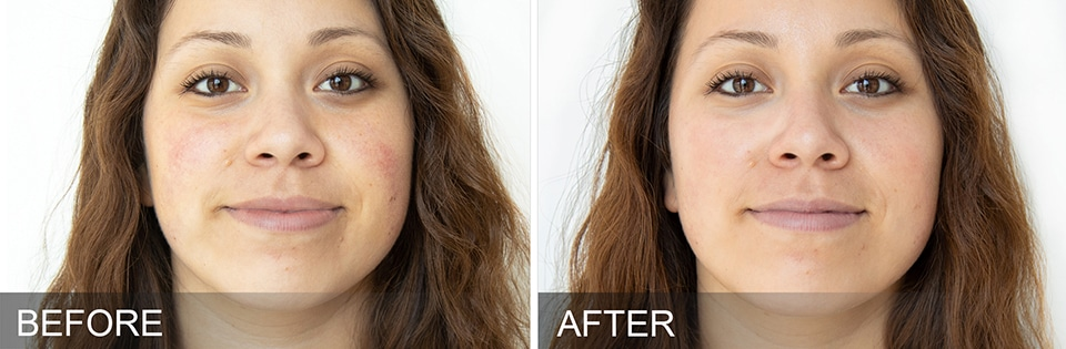 Reduce Skin Redness